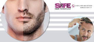 Hair Transplant in Patiala