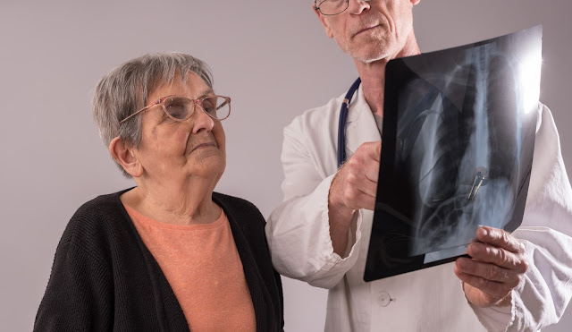 Elderly woman reviews a lung x-ray with her doctor