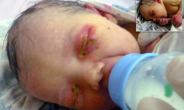 Abandoned Baby Girl Found in Woods Being Eaten Alive By Ants!