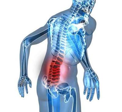 Bóle przeciążeniowe kręgosłupa - co robić?