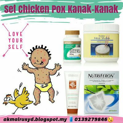 Orang Dewasa Yang Belum Dijangkiti Chicken Pox Berisiko Tinggi Mendapat Jangkitan Yang Lebih Teruk