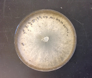 A petri dish with a white fungus and roundish black fruiting bodies around the upper edge of the dish