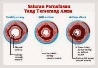 Pengobatan Herbal Terbaik Penyakit Asma