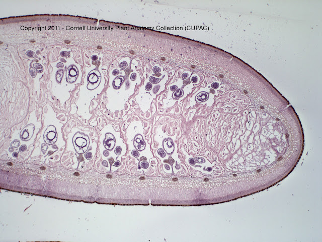 Anatomy Sporocarp of Marsilea