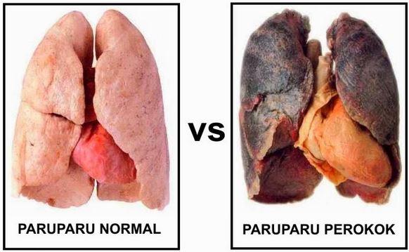Makanan Pembersih Paru-paru