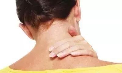 """頸肩問題,久治不斷根,是這裡""""寒氣""""沒有化解(3步驟)"""