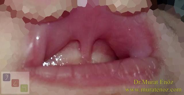 Alveoler hipoplaziye neden olan üst dudak bağı - Üst dudak bağına bağlı üst çene kemiğinde yapısal etkilenme - Üst dudak bağının zararları - Dudak bağının zararları