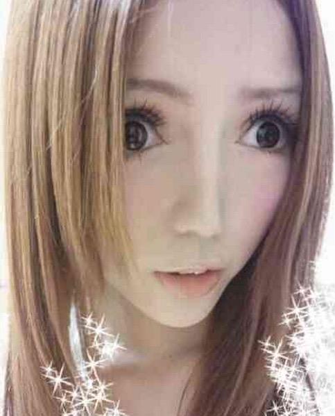 Hidung Gadis Ini Rosak Akibat Sering Lakukan Pembedahan Plastik