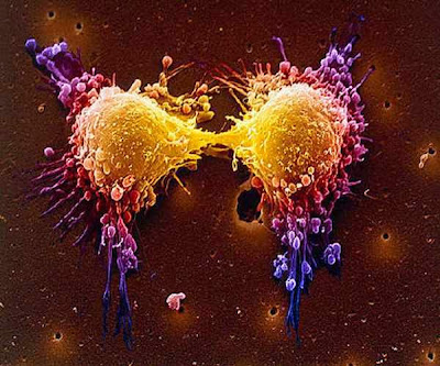 Perbedaan Tumor dan Kanker