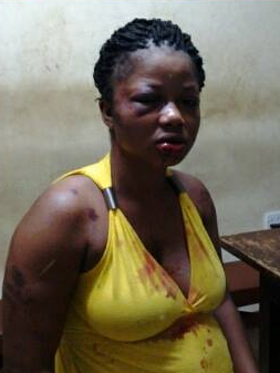 Pregnant lady battered by husband sends him a shocking birthday message