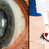 Scientists Discovered! This eye drop can restore your vision that can cure cataracts.