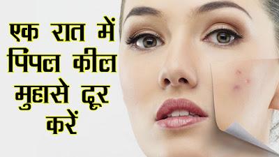 चेहरे से पिम्पल्स मुहांसे हटाने के 10 आसान घरेलू उपाय और नुस्खे