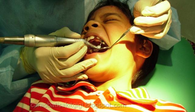 8 Hal penting yang perlu di perhatikan sebelum mencabut gigi berlubang atau rusak dan setelah mencabut gigi, sebaiknya Anda baca