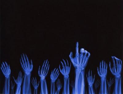 radiografia de varias manos levantadas