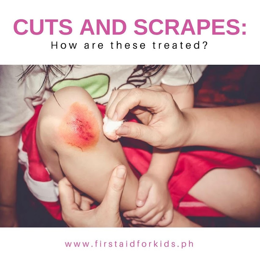 Keeping your Child Skin infection-free