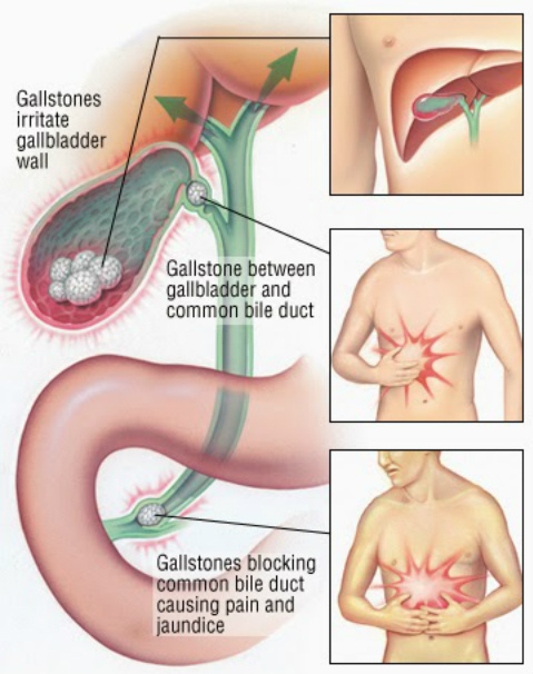 Natural Tips To Remove Gallstones