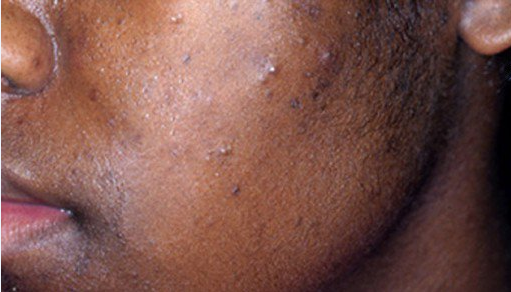 Natural Cure For Pimples And Black Spots