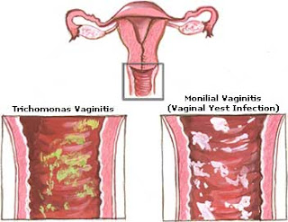 How to cure yeast infection while pregnant