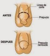 cirscuncision-beneficios