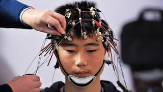 تحفيز الدماغ كهربائيا يزيد من وثيرة التعلم ويدفع إلى الإبداع