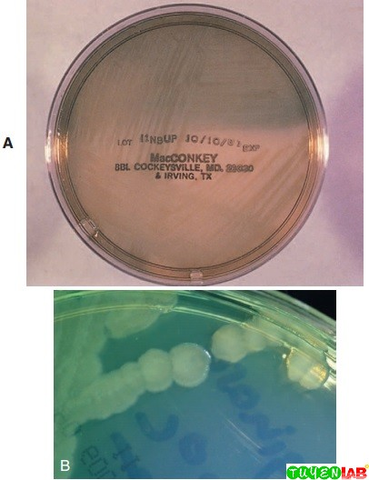 A, Pseudomonas aeruginosa on MacConkey agar and, B, Mueller-Hinton agar. Note the blue-green pigment.