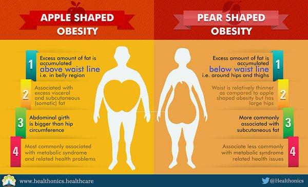 obezitate ginoida