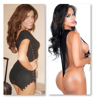 Rosa Acosta Before And After