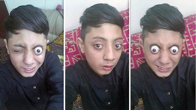 Aneh, Remaja ini Normal Tapi Bisa Keluarkan Bola Matanya Hingga 10 mm