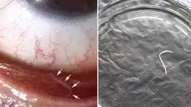Sering Peluk Anjing Tak Cuci Tangan, Wanita Ini Temukan Hal mengerikan di Bola Matanya