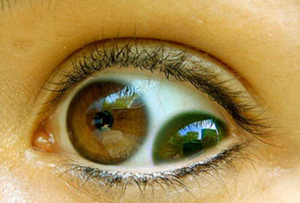 Olho com duas pupilas