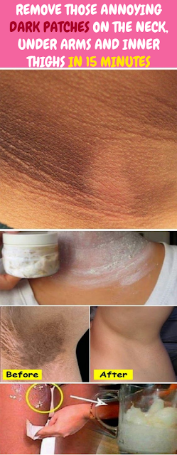 Remove Those Annoying Dark Patches On The Neck, Under Arms And Inner Thighs In 15 Minutes