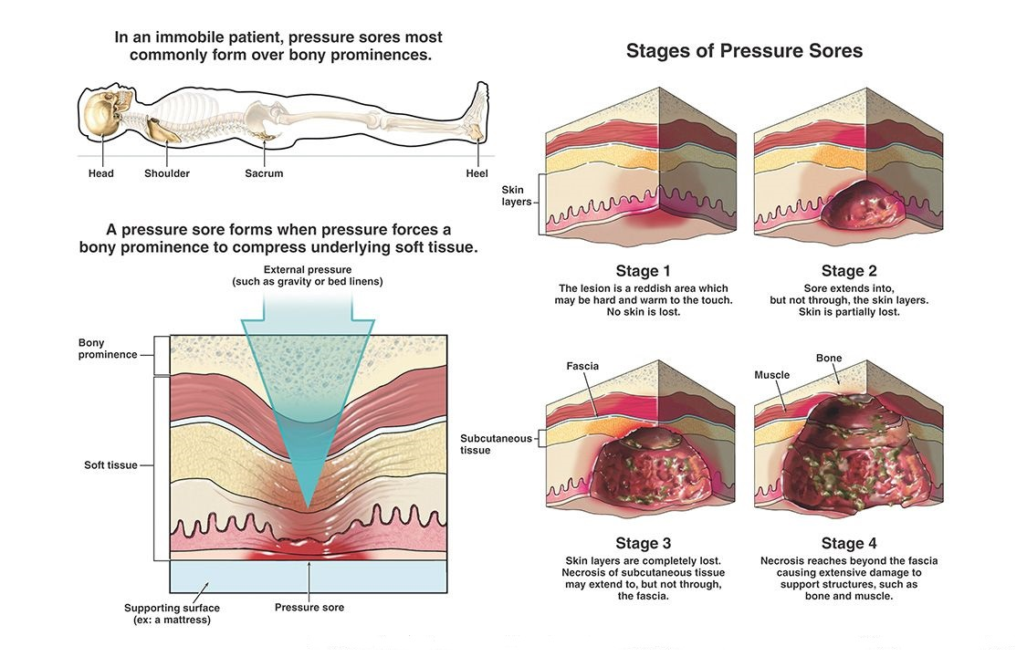 How Are Pressure Ulcers Treated And How To Prevent Skin Breakdown