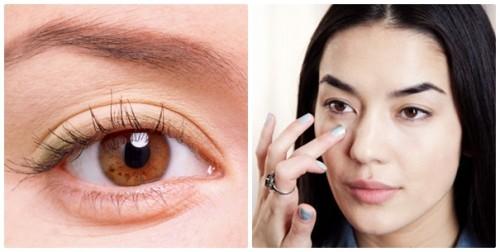Có nên phẫu thuật lấy bọng mỡ mí mắt hay không ?