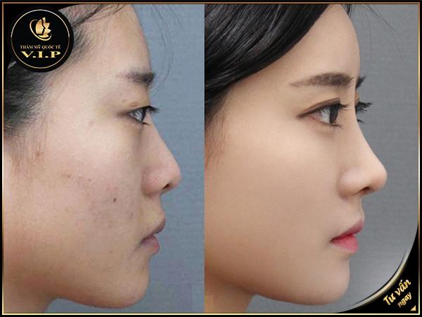 Kết quả hình ảnh cho nâng mũi S Line không phẫu thuật VIP