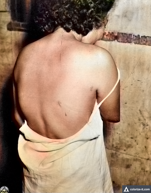 Back of woman with 12 bayonet wounds, Santo Tomas 1945.  Image source:  United States National Archives.