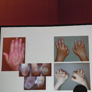 Psoriatic Arthritis - Novartis