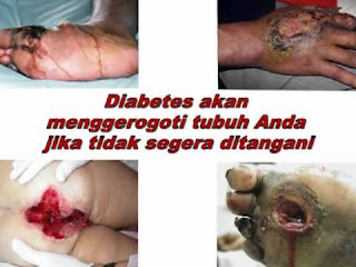 Obat Herbal Diabetes Basah