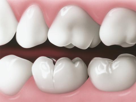 Dentist Bowling Green Ky 42104 Chandler Park Dental Care