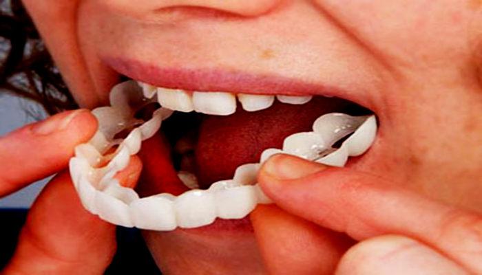 Gigi palsu yang bagus