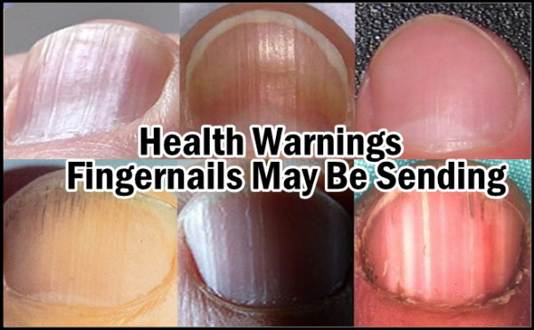 Eight Health Warnings Your Fingernails May Be Sending - The Healthy ...