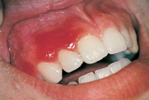 Red Lesions of the Oral Mucosa-Differential Diagnosis, Clinical ...