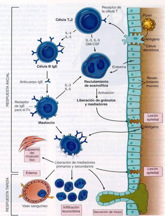 diabetes tipo 1 tipos iv reacción de hipersensibilidad