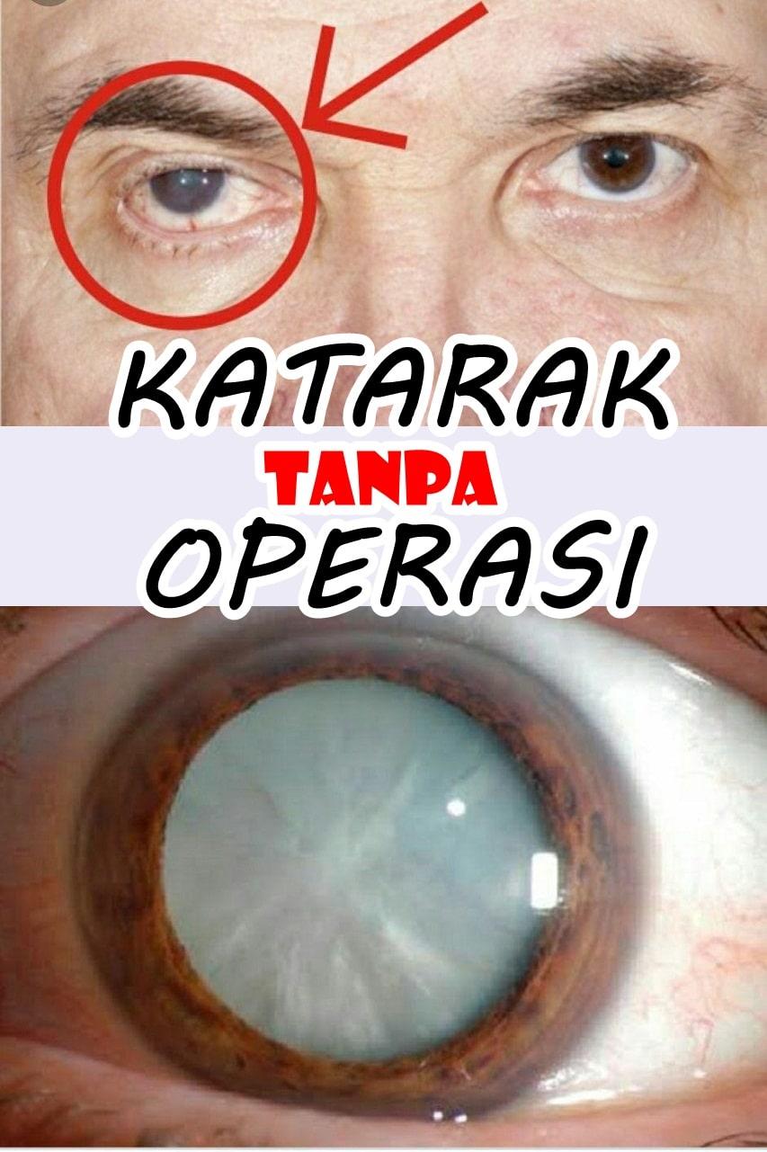 Kacamata terapi katarak tanpa operasi