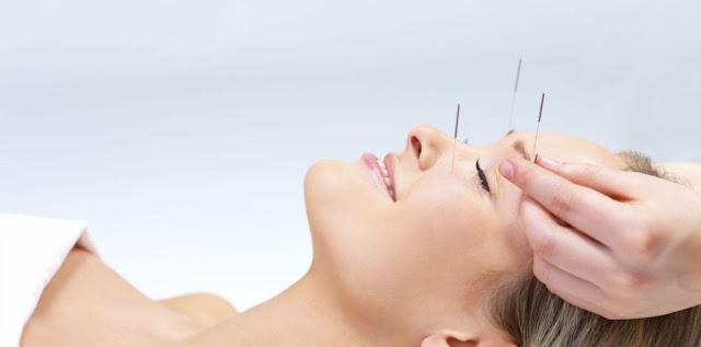 akupunktur kursu