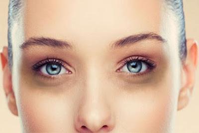 Các công nghệ trị nám da mặt hiện đại