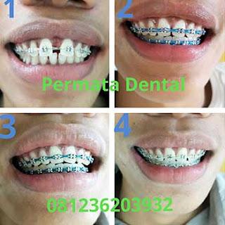 gambar foto gigi renggang tonggos pakai behel bracket kawat gigi