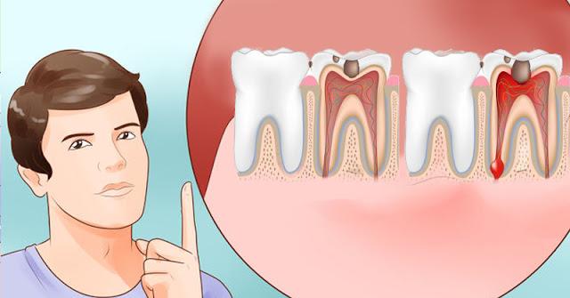 أفضل الأعشاب المفيدة في تسكين ألم الأسنان