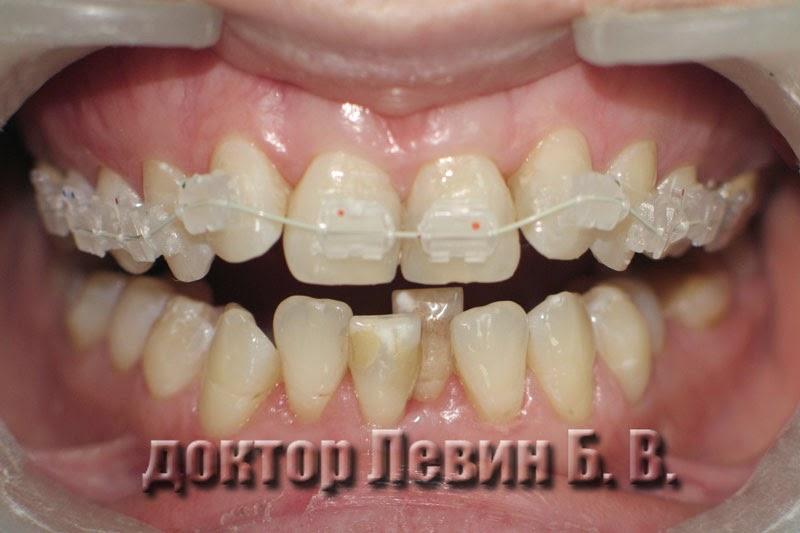 Фотография керамических брекетов установленных на верхний зубной ряд