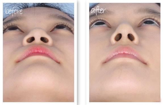 Cuốn cánh mũi và thu gọn cánh mũi khác nhau như thế nào ?