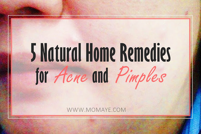 5 Natural Home Remedies for Acne and Pimples, acne, apple cider vinegar, beauty, brown sugar, cinnamon, health, honey, natural facial mask, natural facial scrub, natural facial toner, olive oil,